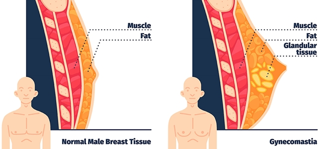 Gynectrol مراجعات العملاء – هل العمل حقا التخلص من التثدي
